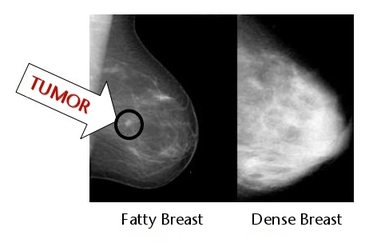 What is breast density
